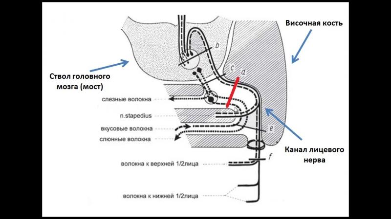 Симптоматика поражения лицевого нерва в канале височной кости. Нейростоматология.