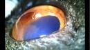 Корнеальный секвестр и сосудистый кератит после травмы роговицы когтём у персидского кота
