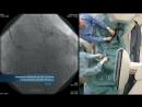 Бифуркационное стентирование ствола левой коронарной артерии