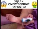 💥НОВИНКА!ЭЛЕКТРИЧЕСКАЯ ПЕМЗА PEDI SPIN💥 НАБОР НАСАДОК В ПОДАРОК!_360p