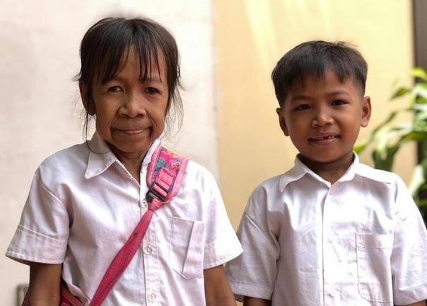 Девочка родилась с лицом старушки и стала объектом для насмешек Из-за редкого заболевания девочка из Камбоджи родилась с морщинистой кожей. Об этом сообщает издание Daily Mirror.Несмотря на