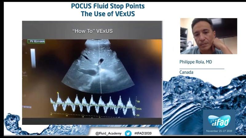 POCUS VExUS and fluid stop points P Rola