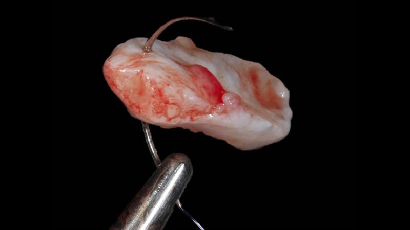 Модуль №2. Дентальная имплантация. Разрезы, швы, иглы.