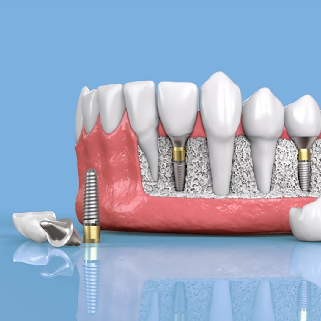 В настоящее время дентальную имплантацию можно назвать наиболее оптимальным методом борьбы с потерей зубов не временно, а на постоянной основе.