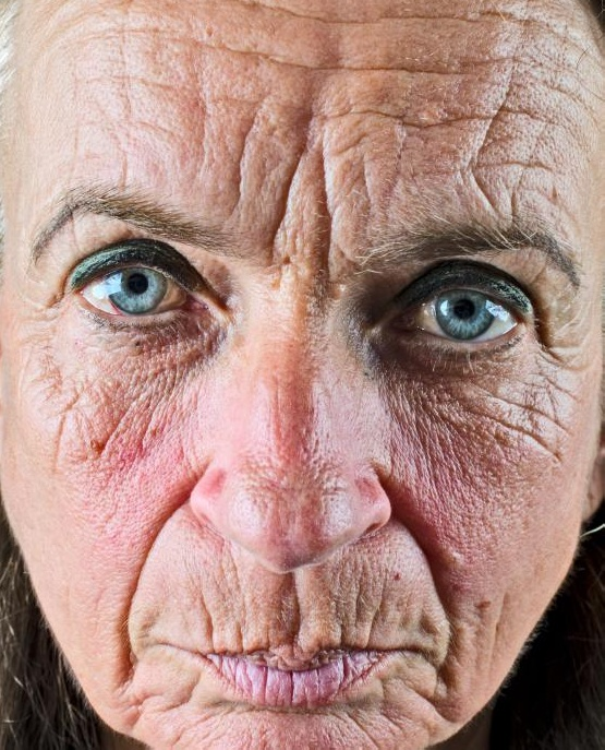 Добавление коэнзима q10 стимулирует выработку коллагеном и эластином кожи, что может помочь предотвратить появление морщин.